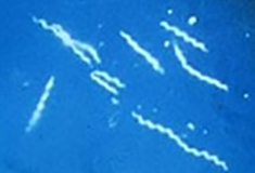 Spirochetes burrow into tissue to infect it. (B. burgdorferi, CDC image)